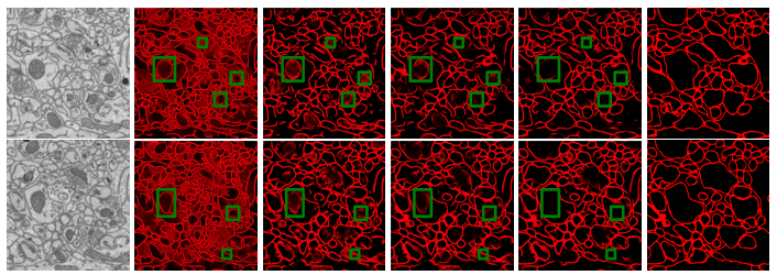 Detection of Neuron Membranes in Electron Microscopy Images using Multi-scale Context and Radon-like Features