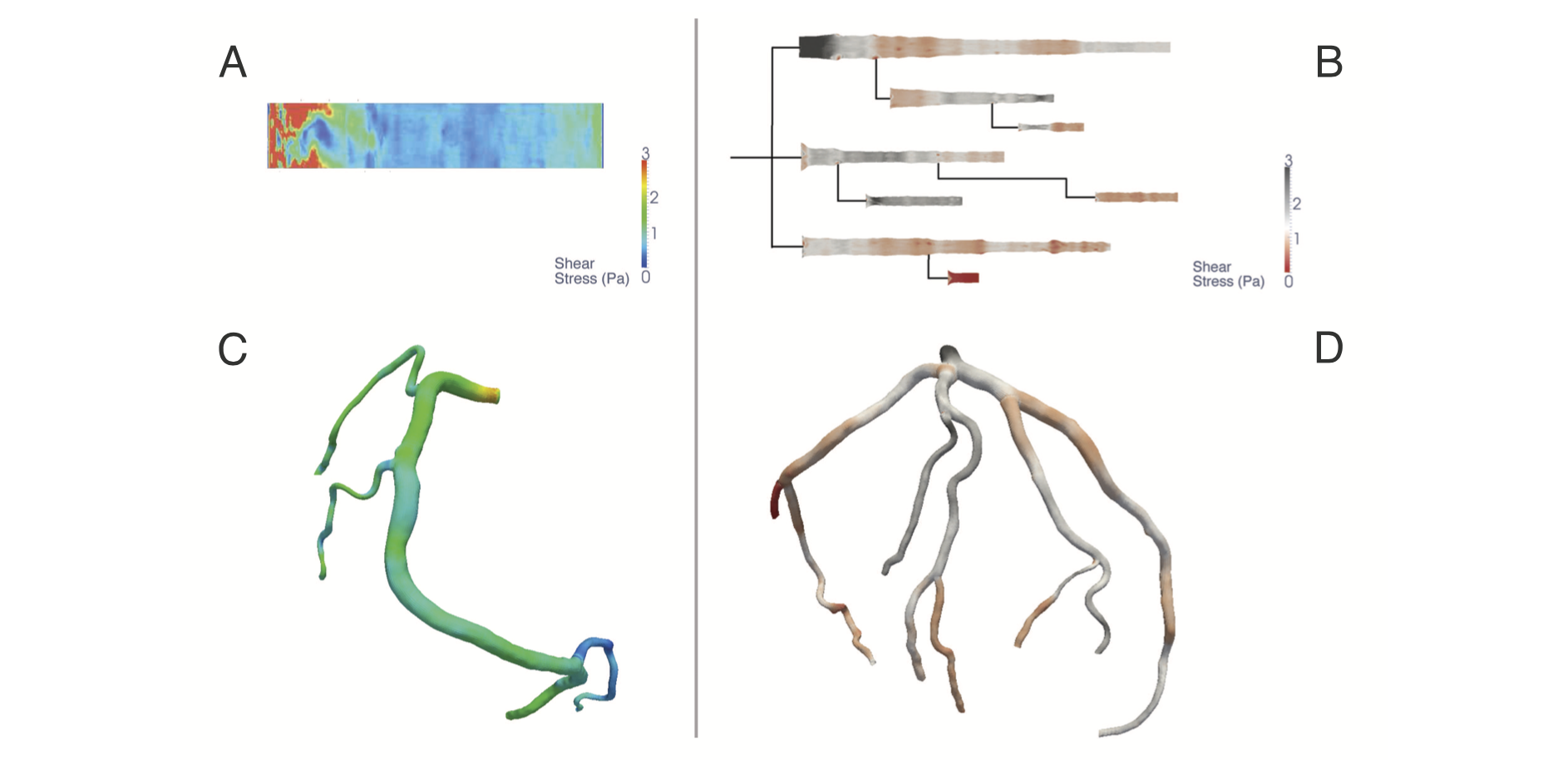 Evaluation of Artery Visualizations for Heart Disease Diagnosis