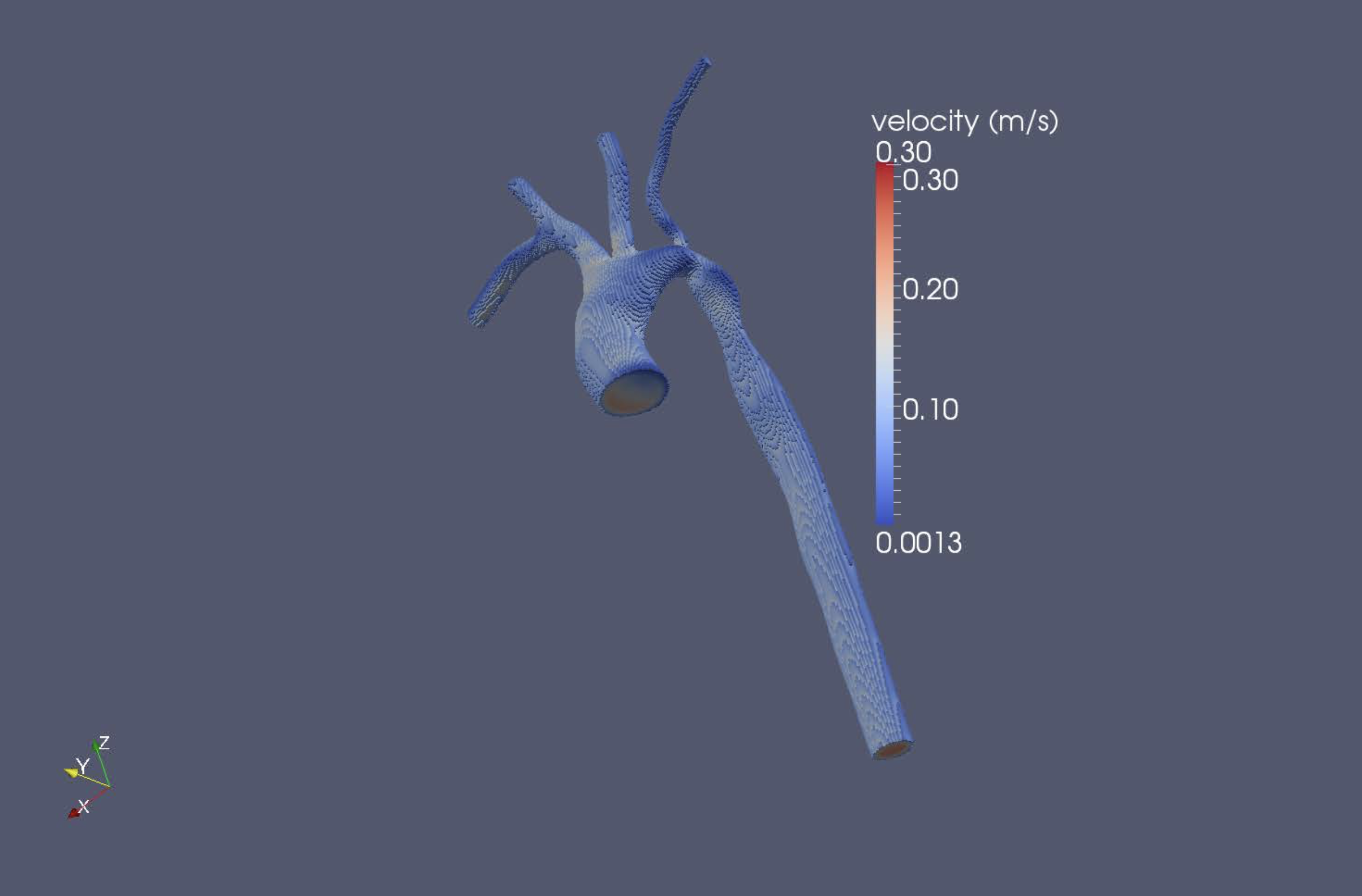 A lattice boltzmann simulation of hemodynamics in a patient-specific aortic coarctation model