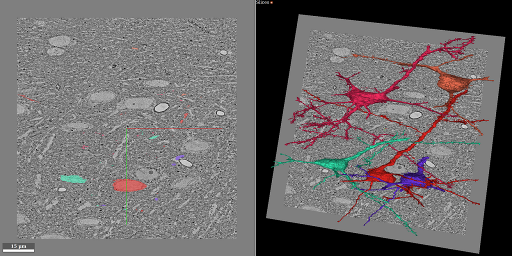 Anisotropic EM Segmentation by 3D Affinity Learning and Agglomeration
