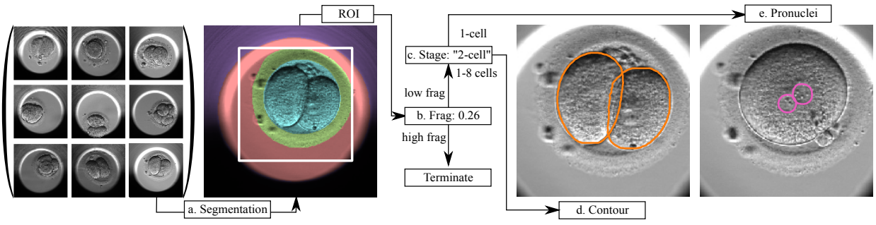 Automated Measurements of Key Morphological Features of Human Embryos for IVF