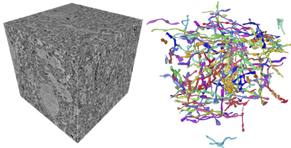 MitoEM Dataset: Large-scale 3D Mitochondria Instance Segmentation from EM Images