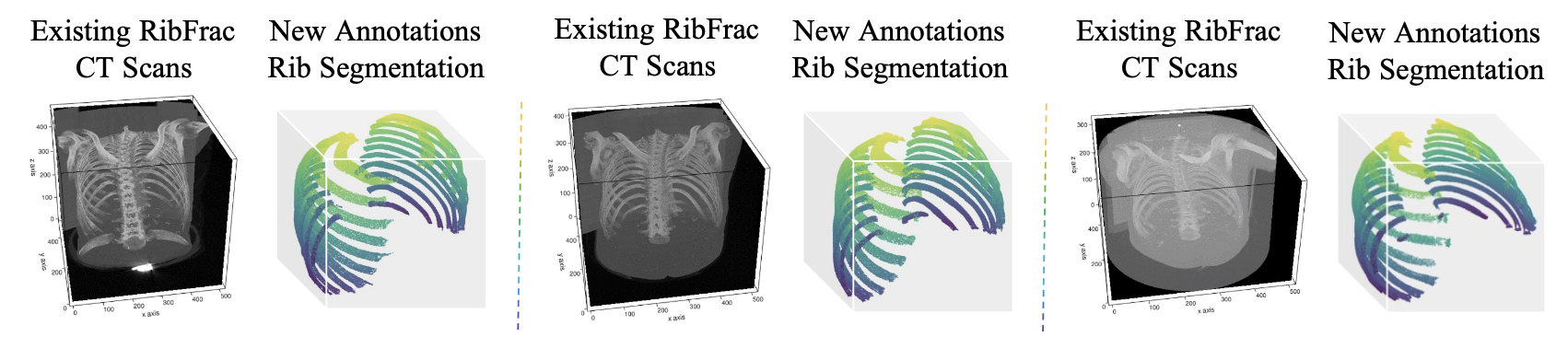 RibSeg Dataset and Strong Point Cloud Baselines for Rib Segmentation from CT Scans